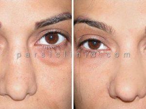 جراحی زیبایی پلک بالا و رفع پف پلک چشم