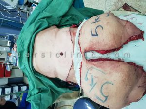 جراحی لیپوماتیک و از بین بردن چربی ها