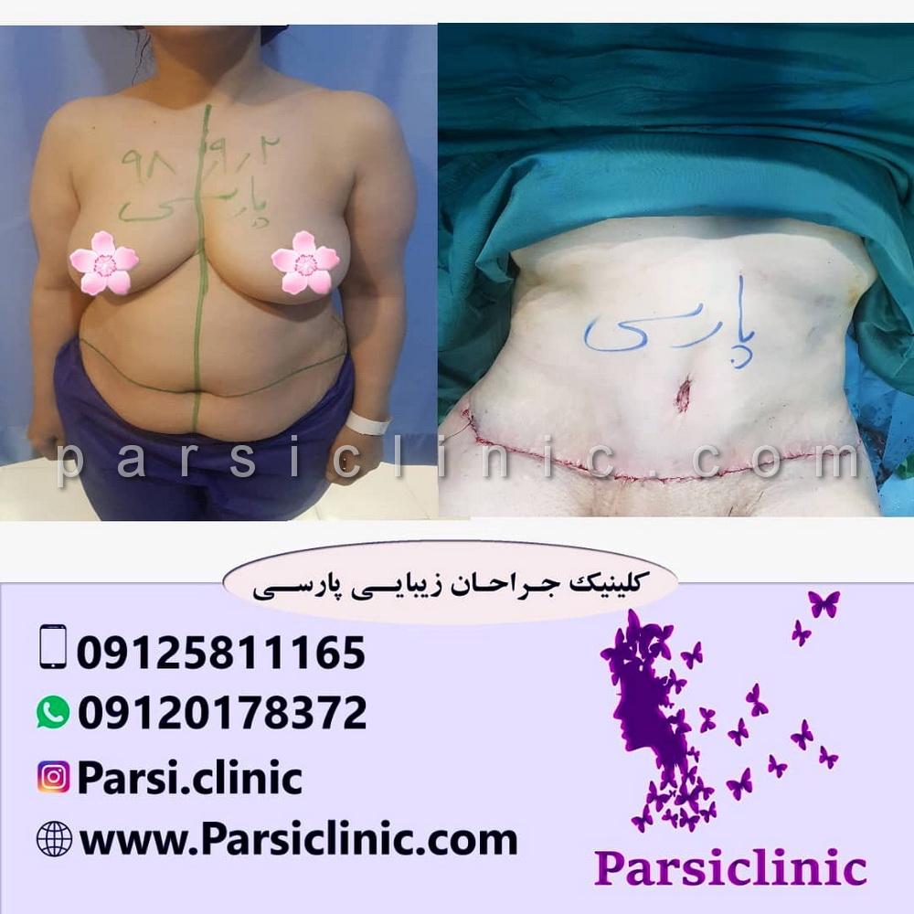 نمونه کار جراحی ابدومینوپلاستی - آذر 1398