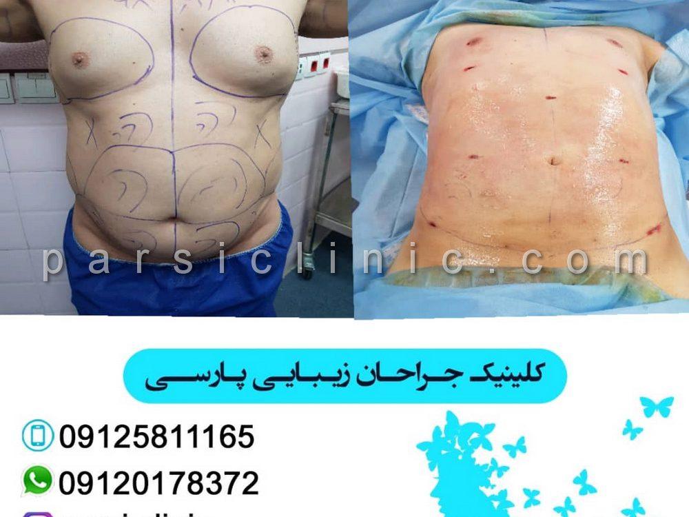 نمونه کار جراحی زیبایی لیپوماتیک - آذر 1398