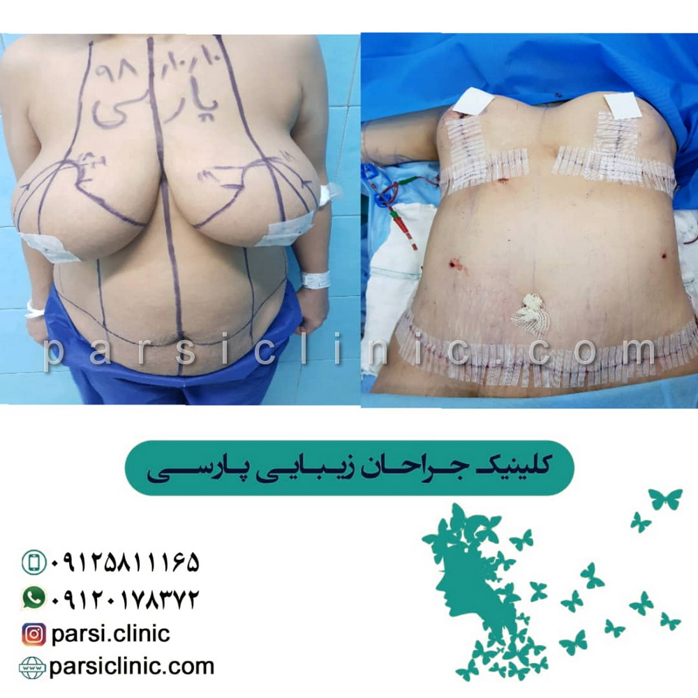 نمونه کار جراحی ماموپلاستی - دی 1398
