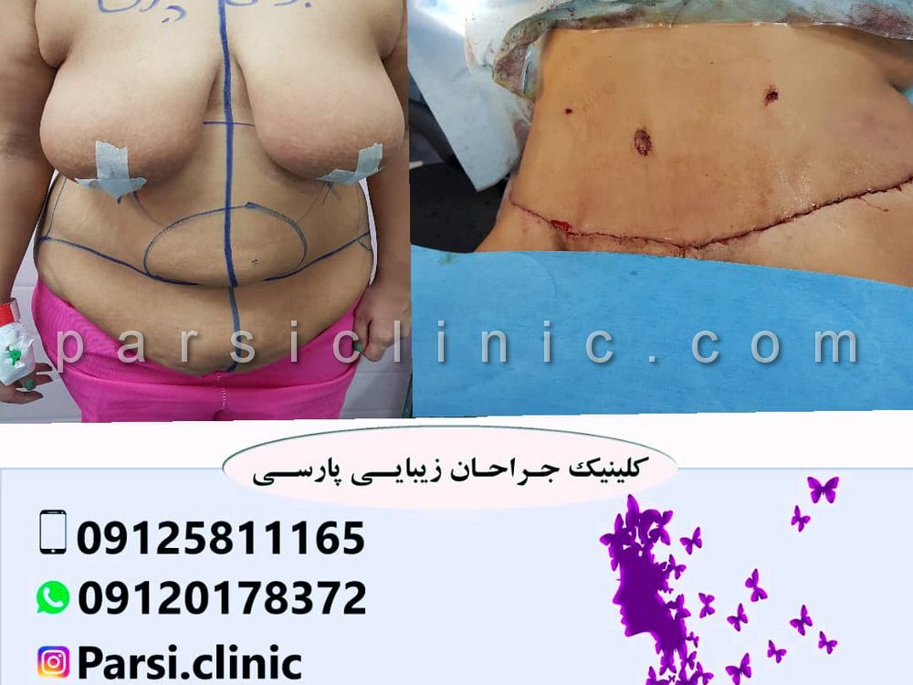 نمونه کار عمل جراحی ابدومینوپلاستی - آذر 1398