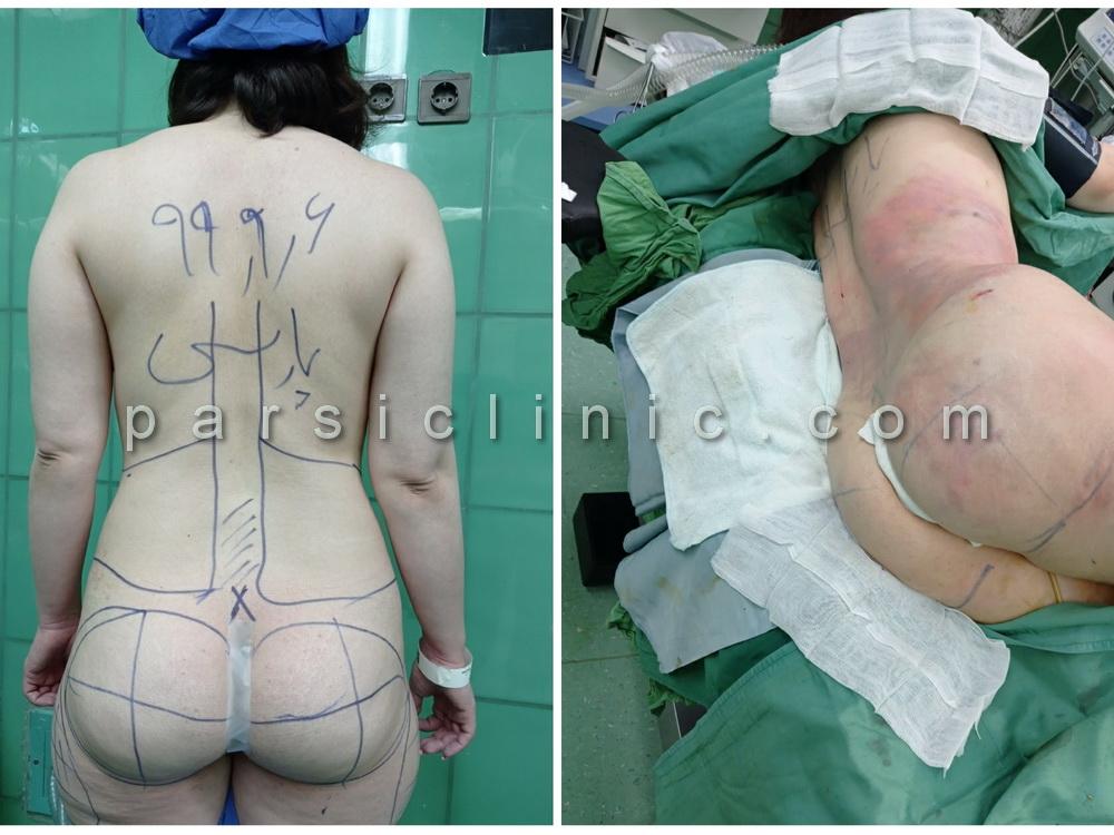 نمونه کار لیپوماتیک پشت و پهلو و تزریق چربی به باسن - آذر 1399