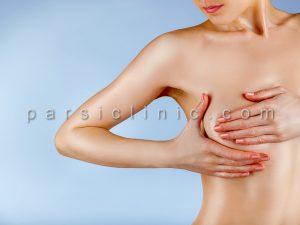 ماموپلاستی کاهشی