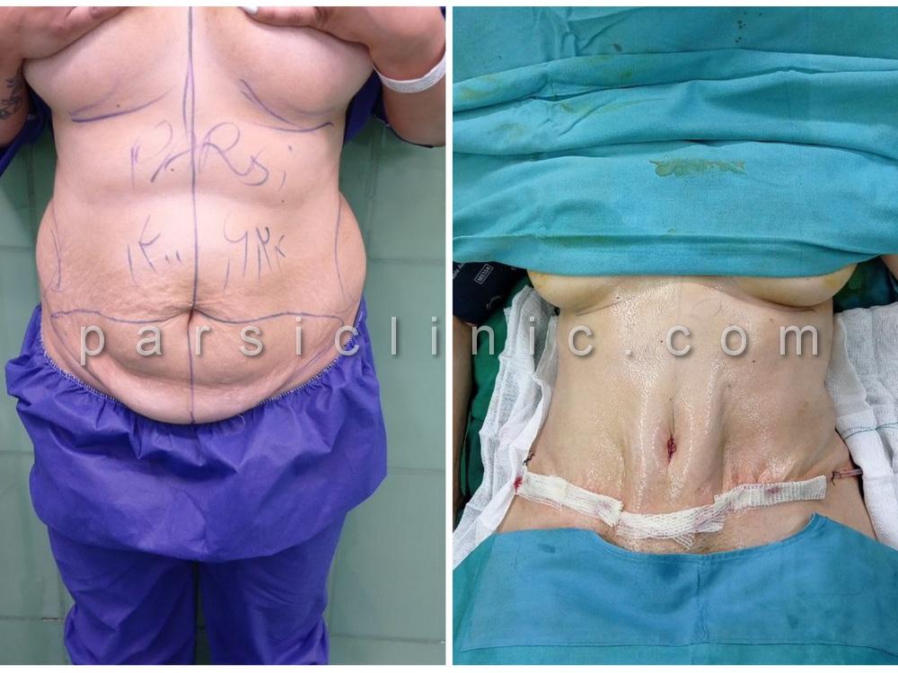 نمونه کار جراحی زیبایی لیپوابدومینوپلاستی - شهریور 1400